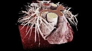 Video «Kardio-CT statt Katheter, Lawinenhunde, Aquarium-Granulom» abspielen