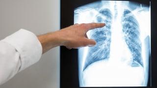 Tuberculosa privlusa avanza