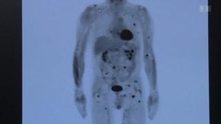 Neuer Therapieansatz gegen Krebs