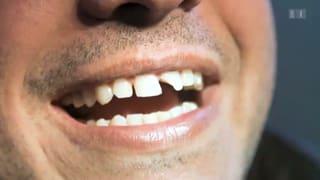 Richtig handeln beim Zahnunfall