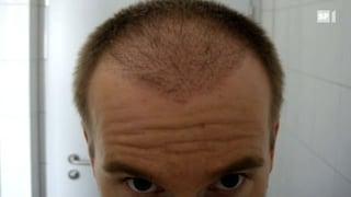 Die Glatze mit eigenen Haaren füllen