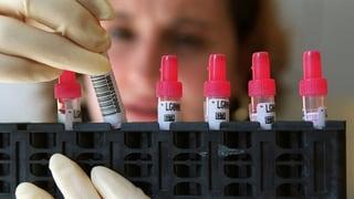 Gespendetes Blut wird genauer untersucht
