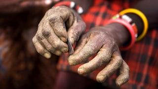 Genitalverstümmelung: Kampf gegen Tradition und Mythen