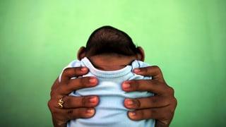 Zika chaschuna propi microcefalia