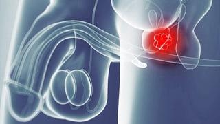 Video «Neue Prostatakrebs-Therapie, Energy-Drinks, Senioren-Lifting» abspielen
