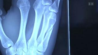 Knochen heilen mit Kunststoffkitt