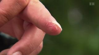Regenerative Medizin – Von Fingerspitzen und Eidechsenschwänzen