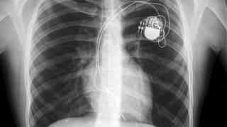 Video «Herzschrittmacher, Pollenmessung, Stöckelschuhe» abspielen