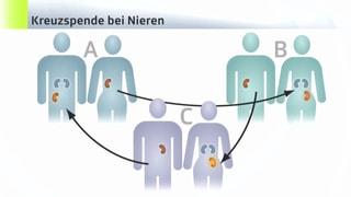 Neues Spendeverfahren soll Organmangel abschwächen