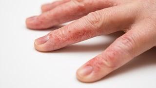 Handekzeme – Hände pflegen, bevor es zu spät ist