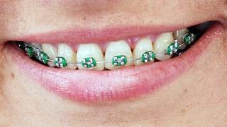 Video «Zahnspange bei Erwachsenen, Herz-OP gegen Hirnschlag, Ärztemangel» abspielen