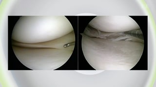 Am Meniskus wird zu häufig operiert