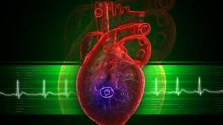 Video «Gebrochenes Herz, dem Lernen auf der Spur, die invasive Aga-Kröte» abspielen