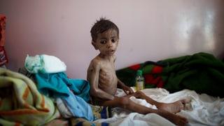 460'000 Kinder vor dem Hungertod