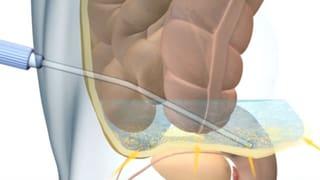Dialyse - Lebensrettung für Nierenkranke