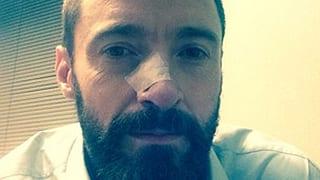 Wieder Krebs: Hugh Jackman musste erneut unters Messer