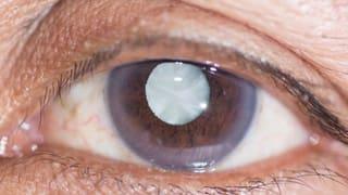 Augentropfen gegen den grauen Star?