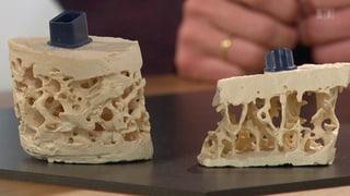 Osteoporose – Früh erkannt, wirksam gebremst