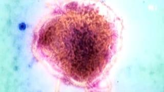 Masern – die unterschätzte Krankheit