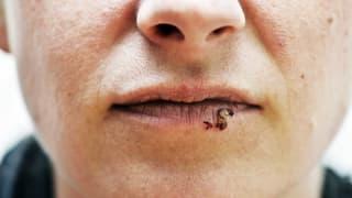 Herpesviren – Schlummern bis zum Ausbruch