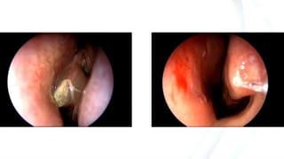 Sinusitis - Verschnupft ohne Verschnaufpause
