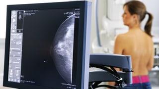 Brustkrebs – Therapiehoffnung unter Vorbehalt