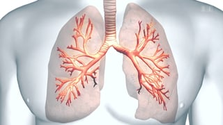 Mit Wärme gegen schweres Asthma