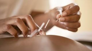 Komplementärmedizin hält Einzug in Spitäler