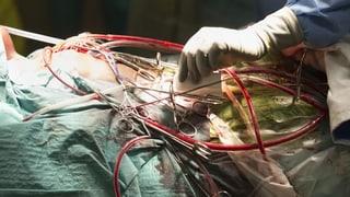 Der Kampf um die Herzchirurgie ist wohl schon entschieden