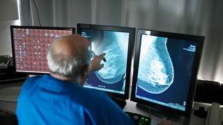 Patientenstelle Ostschweiz verurteilt neue Screeningstudie