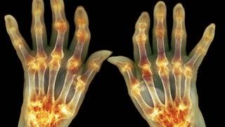 Video «Rheumatoide Arthritis, gekappte Fingerspitze, Melanom-App» abspielen