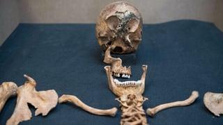 Wohin mit all den Knochen? (Artikel enthält Audio)