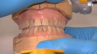 Dritte Zähne – Abnehmbarer Zahnersatz bewährt sich noch immer