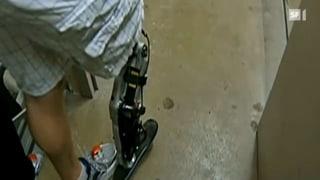 Bionische Prothesen - 103 Stockwerke mit Hightech-Bein