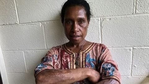 Hexenverfolgung in Papua-Neuguinea (Artikel enthält Audio)