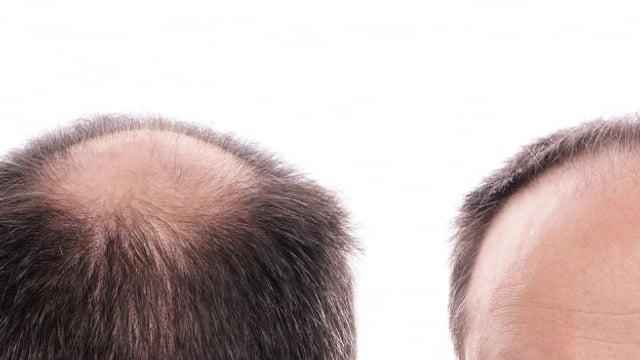 Der Grund für schütteres Haar ist bei Männern und Frauen unterschiedlich.