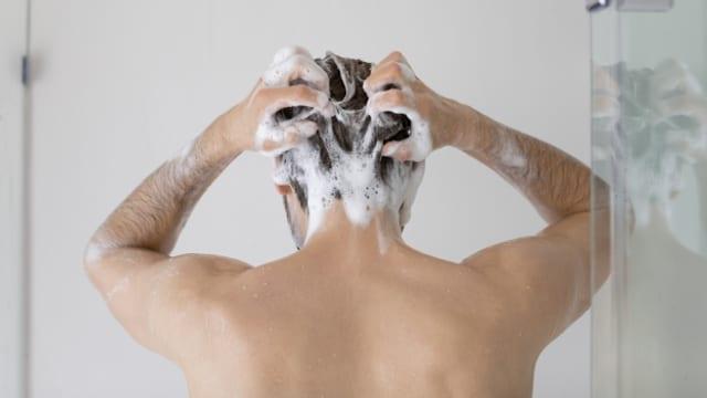 Gegen leichte Schuppen helfen handelsübliche Haarwaschmittel.