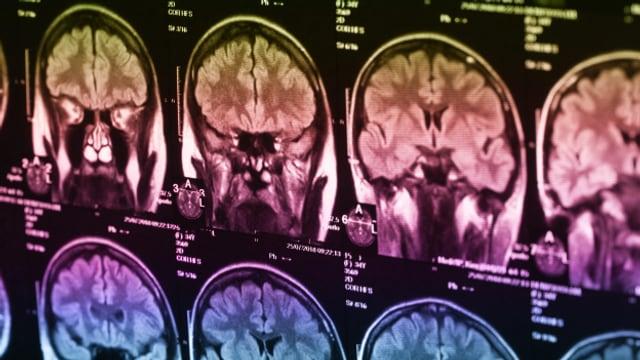Bei einem Schlaganfall wird die Blutzufuhr zum Gehirn unterbrochen.