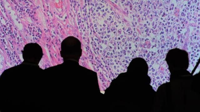 Silhouetten von Menschen vor einem an die Wand projizierten Bild von vergrösserten Krebszellen.