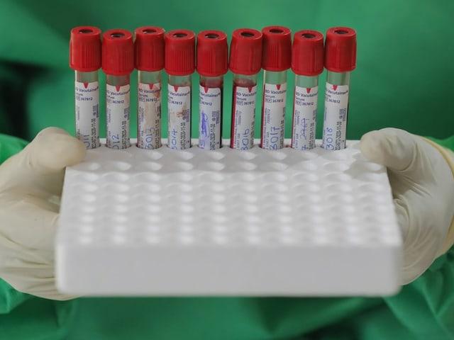Spieler und Staff müssen sich regelmässig auf das Coronavirus untersuchen lassen.