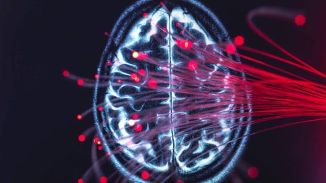 Symbolbild: Gehirnscan.