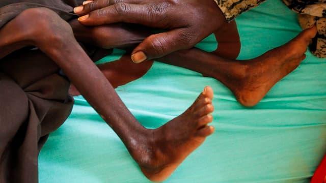 Beine eines unterernährten Kleinkindes