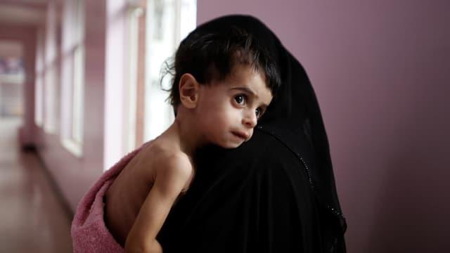 Ausgehungertes Kind in einem jemenitischen Spital.