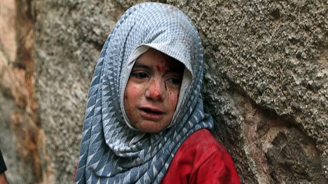 Kleines Mädchen mit Blutspuren im Gesicht drückt sich an eine Mauer.