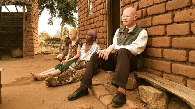 Zwei Albino-Menschen mit weiss-rosa Haut.