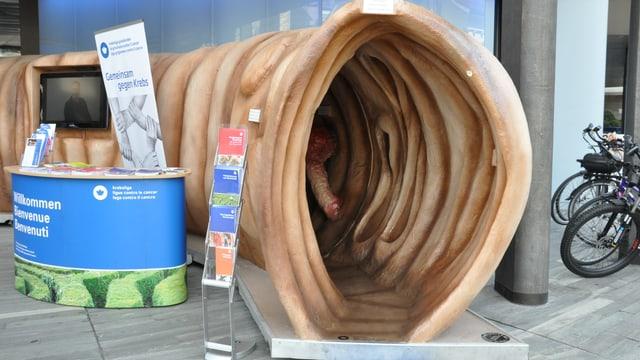 La beglia passabla è ina sort tunnel, el qual ins vesa il svilup da polips betg privlus tar cancer da la beglia.