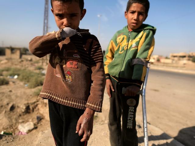 Kinder mit Kriegsverletzungen.