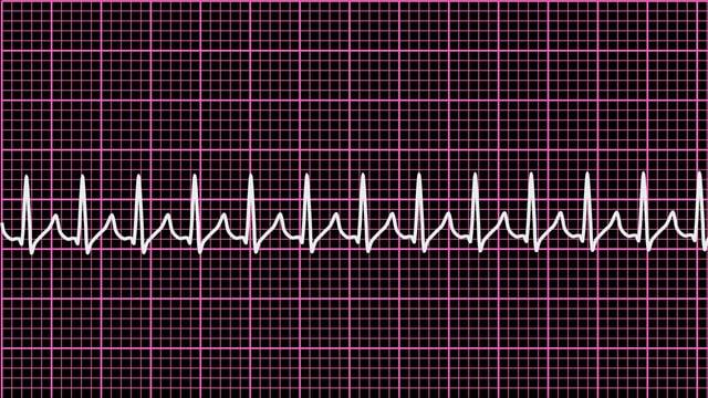 EKG-Bild des Herzrasens.