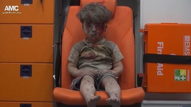 Ein verletztes Kleinkind mit blutverschmiertem Gesicht in einem Krankenwagen.