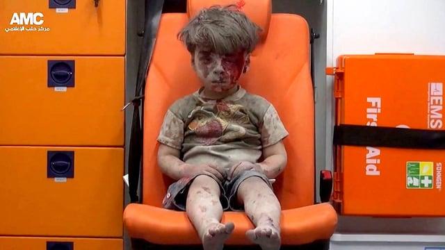 Ein kleiner Junge, voller Staub, mit blutender Wunde am Kopf sitzt auf einem Stuhl.